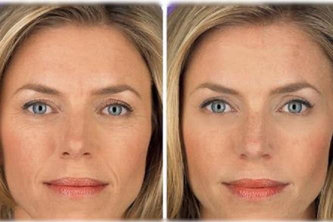 Лазерное омоложение кожи и эпиляция